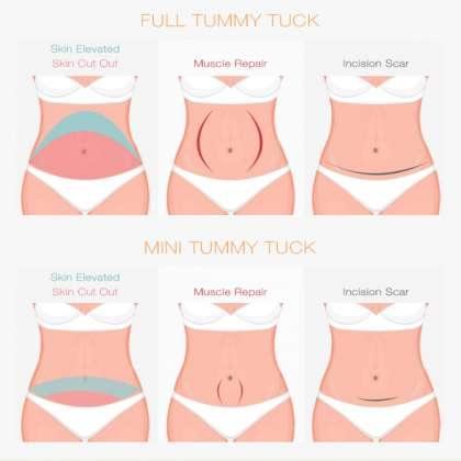 Dr Nema Hair Transplant & Cosmetic Surgery Clinic, Stomach surgery in Jabalpur, Tummy tuck surgery In Jabalpur