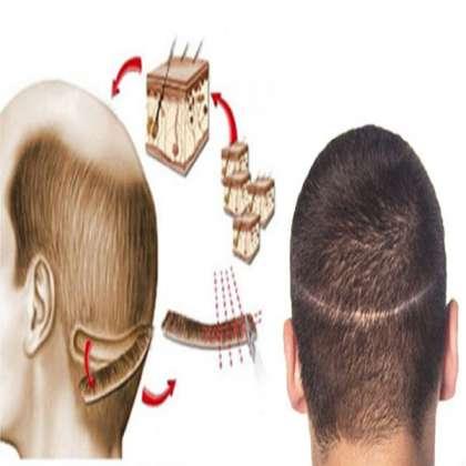 Dr Nema Hair Transplant & Cosmetic Surgery Clinic, FUT strip hair transplant in Jabalpur, best FUT strip hair transplant in Jabalpur, FUT strip hair transplant in Katni