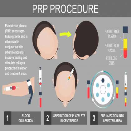 Dr Nema Hair Transplant & Cosmetic Surgery Clinic, PRP Therapy In Jabalpur