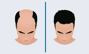 Livglam Anti Ageing Clinics, LIVGLAM CLINIC HAIR TRANSPLANT FUE BALDNESS HAIR LOSS