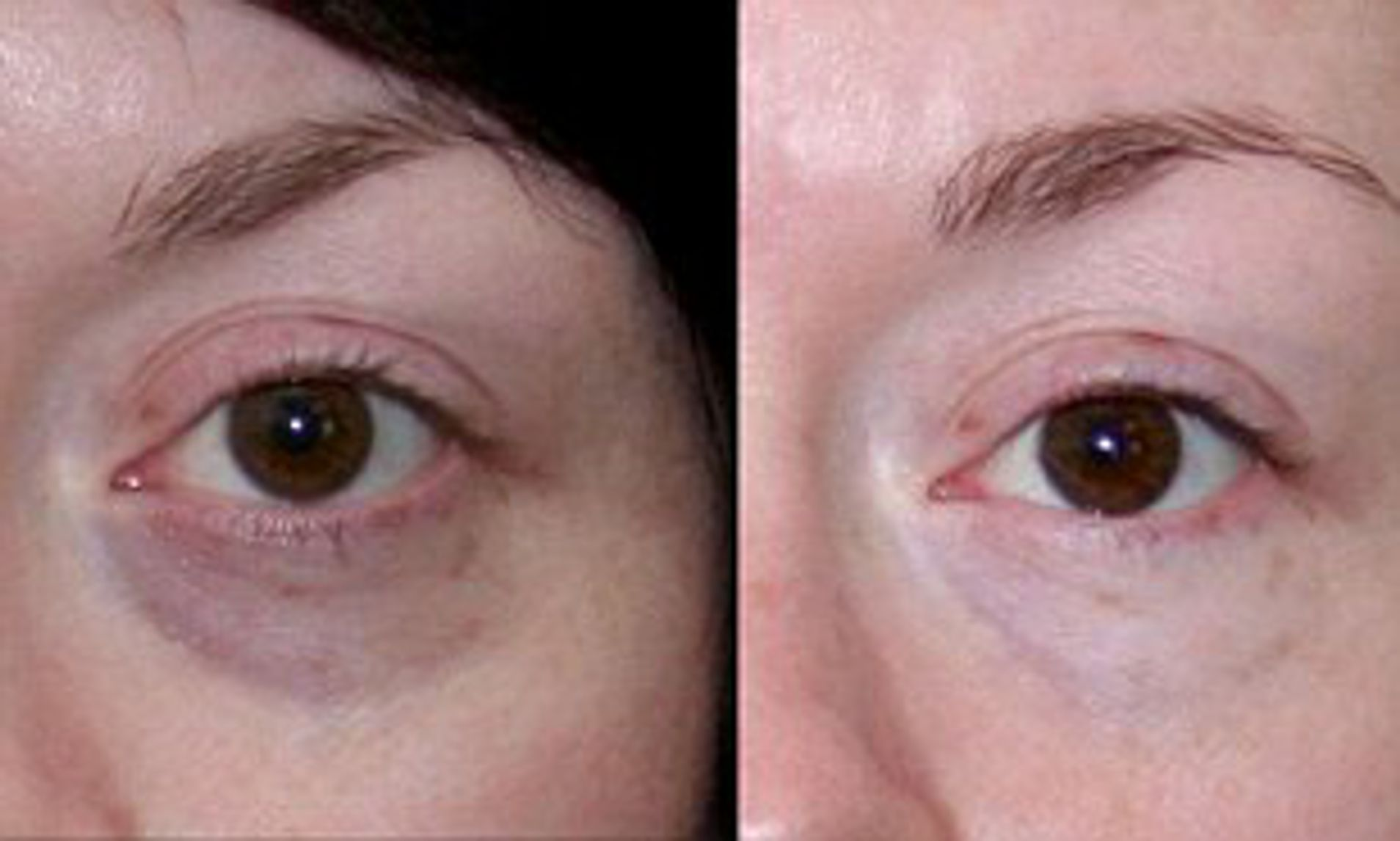 UNDER EYE SKIN REJUVENATION | Livglam Anti Ageing Clinics |  skin rejuvenation   wrinkles  finelines UNDER EYE DARK - GL87153