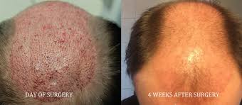 Sai Cosmetics, HAIR TREATMENT IN CHINCHWAD, HAIR TRANSPLANT IN CHINCHWAD, HAIR REGROWTH IN CHINCHWAD, HAIR DOCTOR IN CHINCHWAD, HAIR CLINIC IN CHINCHWAD, HAIR SPECIALIST IN CHINCHWAD, FUE TRANSPLANT IN CHINCHWAD.