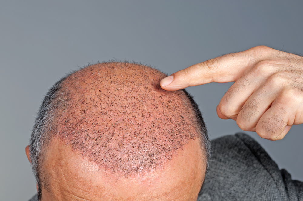 Hair Transplant  | Sai Cosmetics | HAIR TRANSPLANT IN CHINCHWAD, HAIR TREATMENT IN CHINCHWAD, HAIR REGROWTH IN CHINCHWAD, HAIR DOCTOR IN CHINCHWAD, HAIR CLINIC IN CHINCHWAD, HAIR SPECIALIST IN CHINCHWAD, FUE TRANSPLANT IN CHINCHWAD.   - GL35048