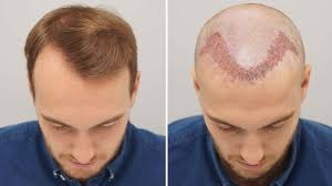Sai Cosmetics, HAIR TRANSPLANT IN BHOSARI, HAIR TREATMENT IN BHOSARI, HAIR REGROWTH IN BHOSARI, HAIR DOCTOR IN BHOSARI, HAIR CLINIC IN BHOSARI, HAIR SPECIALIST IN BHOSARI, HAIR TRANSPLANT COST IN BHOSARI, BEST, TOP.