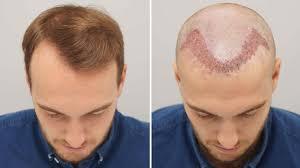 Hair Treatment  | Sai Cosmetics | HAIR TRANSPLANT IN BHOSARI, HAIR TREATMENT IN BHOSARI, HAIR REGROWTH IN BHOSARI, HAIR DOCTOR IN BHOSARI, HAIR CLINIC IN BHOSARI, HAIR SPECIALIST IN BHOSARI, HAIR TRANSPLANT COST IN BHOSARI, BEST, TOP. - GL35045
