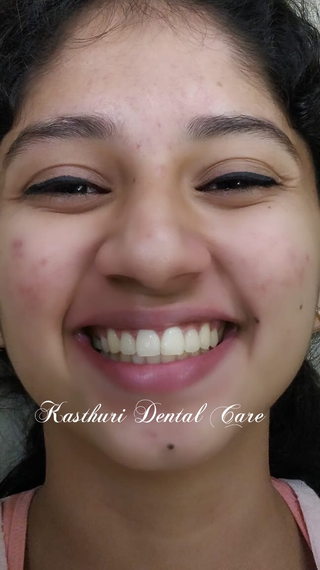 Kasthuri Dental Care Centre, DENTISTS NEAR ME   #DENTISTS NEAR SANJAY NAGAR   #DENTAL CLINIC NEAR ME   #SPECIALIZED DENTAL CLINIC SALIVARY GLAND DISORDERS   #PRECANCEROUS CONDITIONS   #SMILE CORRECTION   #DENTAL IMPLANTS