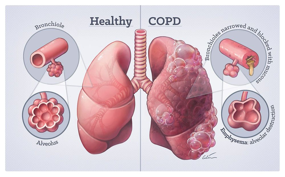 Saburi Solace Clinic, Fuel or smoke inhalation ailments treatment with homeopathy in chandigarh,cough treatment with homeopathy in chandigarh,immunity treatment with homeopathy in chandigarh,sadness treatment with homeopat