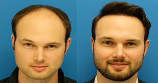 Sai Cosmetics, HAIR TRANSPLANT IN PUNE, HAIR TREATMENT IN PUNE, HAIR HAIR REGROWTH IN PUNE, HAIR DOCTOR IN PUNE, HAIR CLINIC IN PUNE, HAIR SPECIALIST IN PUNE, FUE HAIR TRANSPLANT IN PUNE, BEST, TOP.