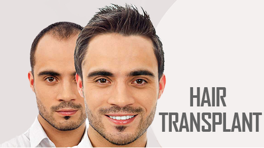 Cost Effective Hair Transplant Treatment in Bannerghatta Road Bangalore. | Livglam Anti Ageing Clinics | 
