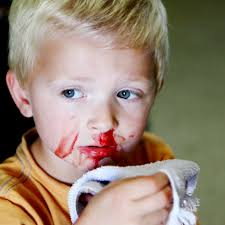 Saburi Solace Clinic, Treatment of Nose bleed as immune response with Homeopathic Medicine, Nose bleed treatment for children with week immunity with homeopathic medicines, homeopathy for nose bleed with immune boost.
