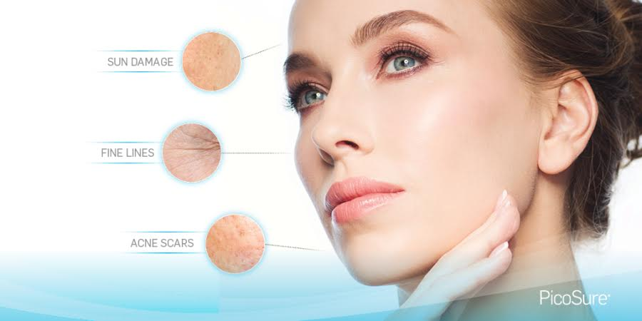 Livglam Anti Ageing Clinics, lasers for wrinkles, fine lines, sagging face, double chin