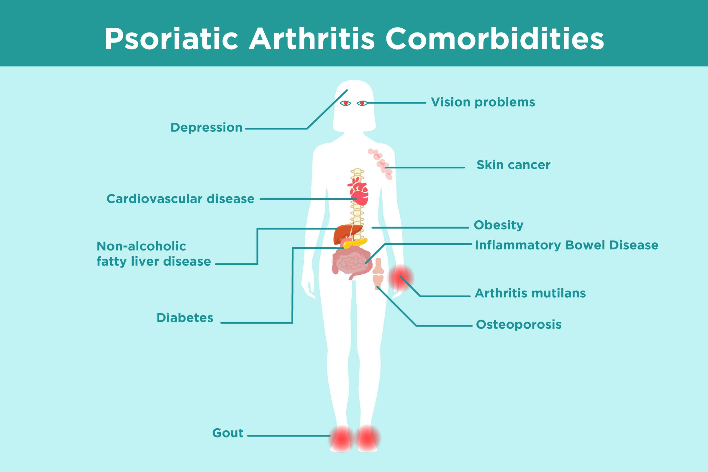 Psoriatic Arthritis Complications and Homeopathy   Saburi Solace Clinic   uveitis treatment with homeopathy in chandigarh,psoriatic arthritis treatment with homeopathy in chandigarh,cataract treatment with homeopathy in chandigarh,deformed joints with pain treatment  - GL100306