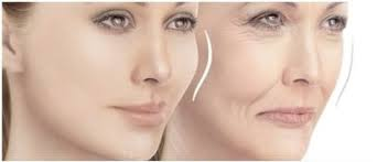 Livglam Anti Ageing Clinics, DERMAL FILLERS FOR WRINKLES FINELINES LIPS AND FAT ATROPHY