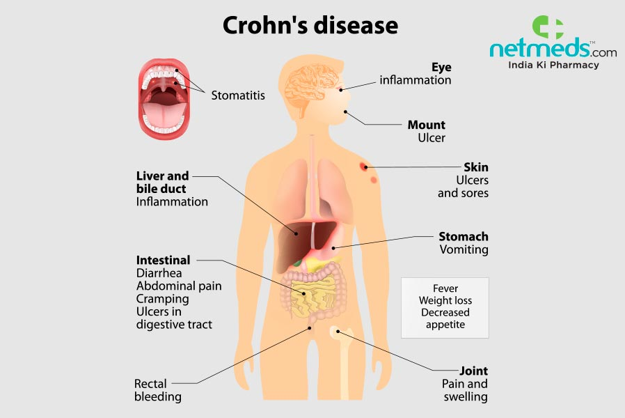 Crohn's Disease Treatment and Homeopathy | Saburi Solace Clinic | Homeopathic treatment for abdominal disorders,homeopathic treatment in chandigarh for IBS,dyspepsia treatment with homeopathy in chandigarh,heartburn treatment with homeopathy in chandigarh,nausea cur - GL97677