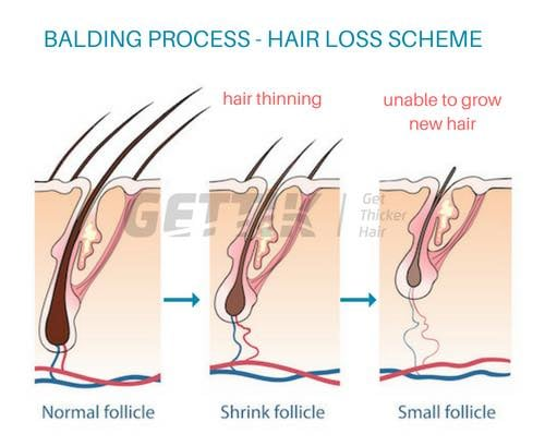 Livglam Anti Ageing Clinics, DHT HAIR LOSS,  BALDNESS,  RECEDING HAIRLINE,HAIR THINNING,REGROWTH OF HAIR
