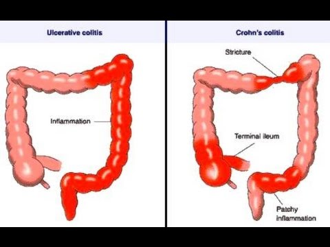 Difference between UC and Crohn's Disease and Homeopathic Treatment  | Saburi Solace Clinic | IBD treatment with homeopathy in chandigarh,IBS treatment with homeopathy in chandigarh,abdominal pain treatment with homeopathy in chandigarh,nausea vomiting treatment with homeopathy in chandigarh - GL97765