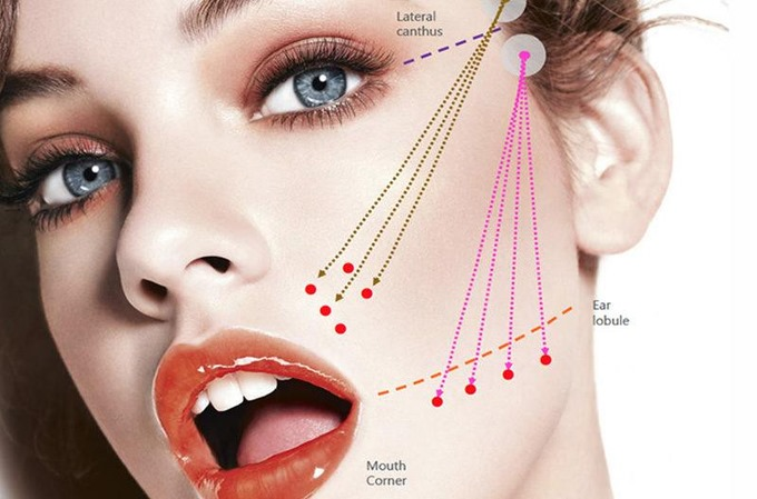 non surgical face lift with threads | Livglam Anti Ageing Clinics | face lift,  skin rejuvenation ,  wrinkles , fine lines  - GL84581