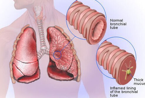 Saburi Solace Clinic, Bronchitis treatment with homeopathy in chandigarh,cough treatment with homeopathy in chandigarh,COPD treatment with homeopathy in chandigarh,Mucus with cough treatment with homeopathy in chandigarh