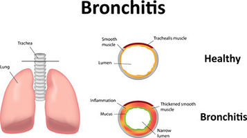 Saburi Solace Clinic, acute bronchitis treatment with homeopathy in chandigarh,chronic bronchitis treatment with homeopathy in chandigarh,chronic cough cold treatment with homeopathy in chandigarh,chest cold treatment