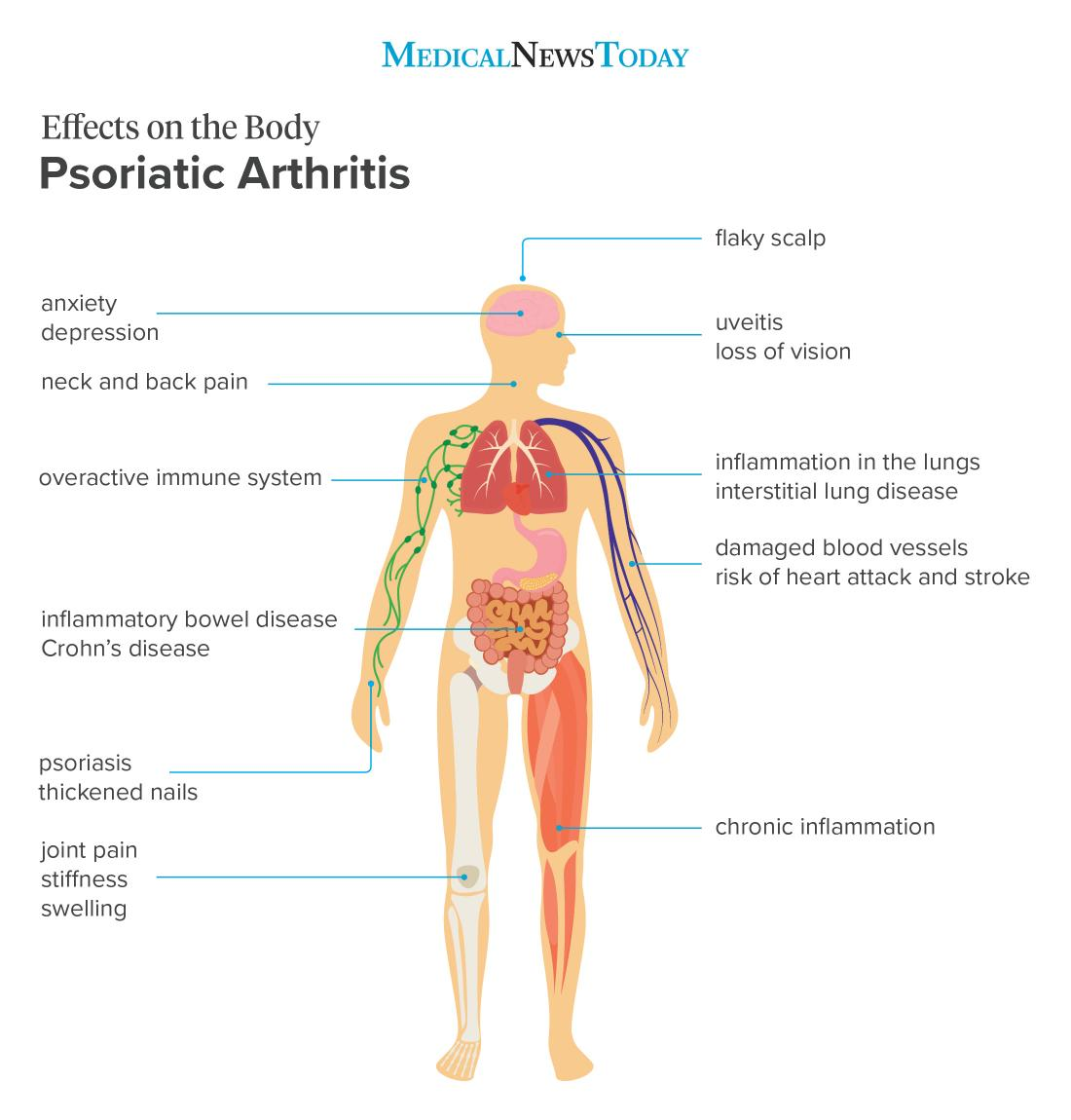 Psoriatic Arthritis Lifestyle, Home Remedies and Homeopathy   Saburi Solace Clinic   psoriatic arthritis treatment with homeopathy in chandigarh,joint pains treatment with homeopathy in chandigarh,obesity treatment with homeopathy in chandigarh,psoriasis treatment with homeopathy  - GL100339