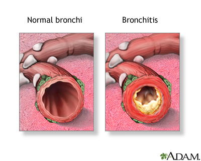 Symptoms of Bronchitis and Treatment with Homeopathy. | Saburi Solace Clinic | bronchitis treatment with homeopathy in chandigarh,productive cough and fever treatment with homeopathy in chandigarh,Acute chronic bronchitis treatment with homeopathy in chandigarh,lingering cough - GL87263