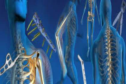 Shree Surgicals, Orthopedic Implants In Chandigarh, Orthopedic Implants dealers In Chandigarh, Orthopedic Implants Suppliers In Chandigarh