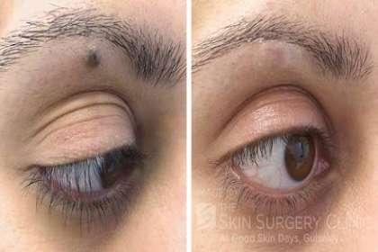 Updates | Renovin Skin Care | Call 9876931601 in City: Zirakpur