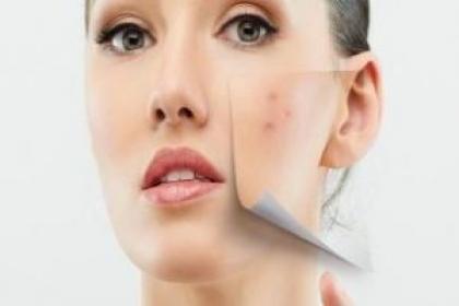 Renova Skin Care, skin doctor in zirakpur,dermatologist in zirakpur ,skin specialist in zirakpur,best skin doctor in zirakpur,skin doctor,skin specialist,dermatologist,skin care clinic in zirakpur