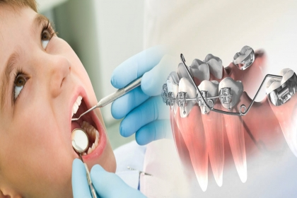 Dr. CHAUDHARI MULTISPECIALITY, DENTAL CLINIC, DENTAL CLINIC IN SAHAKAR NAGAR, BEST DENTAL CLINIC IN SAHAKAR NAGAR, DENTIST, DENTIST IN SAHAKAR NAGAR, BEST DENTIST IN SAHAKAR NAGAR, COSMETIC DENTIST IN SAHAKAR NAGAR, BEST.