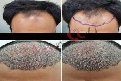 Updates - New Roots Skin & Hair Clinic | BEST HAIR CLINIC