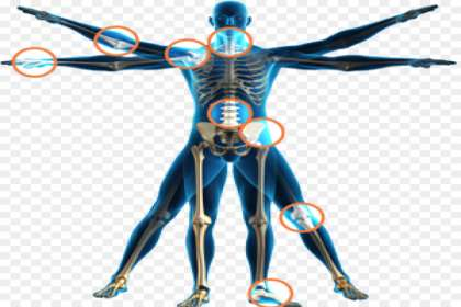 Aastha Physiotherapy & Fitness Centre, Physiotherapy for Joint Injuries In Jabalpur, best Physiotherapy for Joint Injuries In Jabalpur, physiotherapy at home for Joint pain In Jabalpur, best joint pain doctor in Jabalpur, physio in Jbp