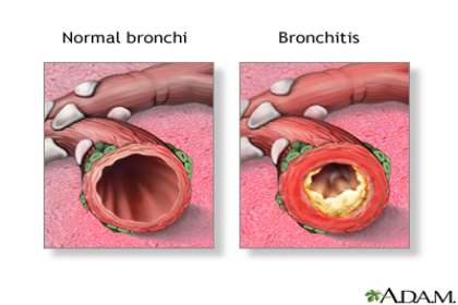 Saburi Solace Clinic, bronchitis treatment with homeopathy in chandigarh,productive cough and fever treatment with homeopathy in chandigarh,Acute chronic bronchitis treatment with homeopathy in chandigarh,lingering cough
