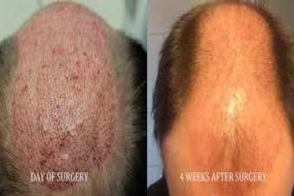 Sai Cosmetics, HAIR TREATMENT IN PUNE, HAIR TRANSPLANT IN PUNE, HAIR REGROWTH IN PUNE, HAIR CLINIC IN PUNE, HAIR DOCTOR IN PUNE, MALE PATTERN BALDNESS IN PUNE, HAIR SPECIALIST IN PUNE, BEST, TOP.