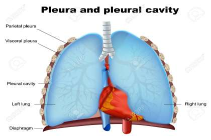 Saburi Solace Clinic, Pleurisy treatment with homeopathy in chandigarh,pneumonia treatment with homeopathy in chandigarh,chest pain with cough treatment with homeopathy in chandigarh,chest infections treatment with homeopa