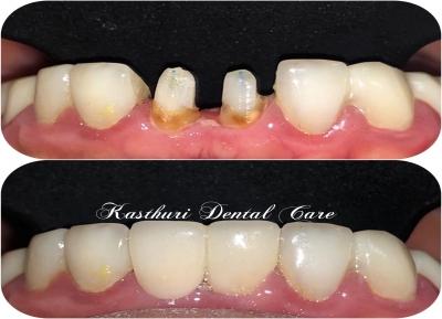 Kasthuri Dental Care